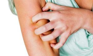 5 dấu hiệu 'lạ' trên da cảnh báo ung thư và nhiều bệnh nguy hiểm khác, đặc biệt là số 2