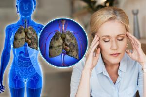 Dấu hiệu chứng tỏ phổi của bạn đang 'kêu cứu', rất nhiều người vẫn chủ quan bỏ qua